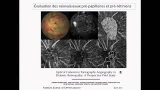 Suivi de la rétinopathie diabétique en OCT Angiographie – Dr Sophie Bonnin