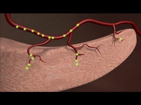 Le Diabète, Maladie Du XXIè Siècle