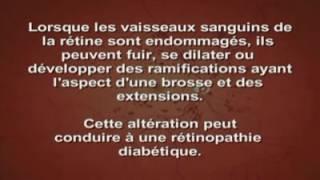 Rétinopathie diabétique: causes et symptomes