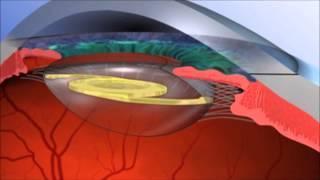 L'Opération de la Cataracte : Comment se Déroule-t-elle ?