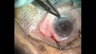 Chirurgie d'une cataracte totale brune par extraction extra capsulaire manuelle