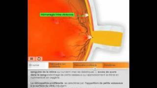 La Rétinopathie diabétique par Quantel Medical