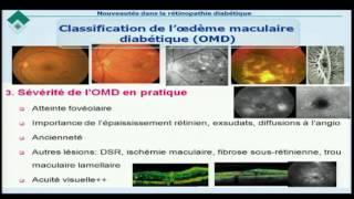 Rétinopathie diabétique: caractéristiques cliniques et thérapeutique