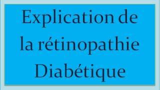 Comment savoir si on est atteint de la Rétinopathie Diabétique