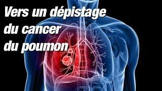 Dépistage du cancer du poumon