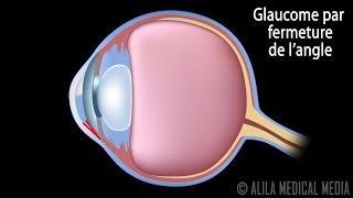 Glaucome à Angle Ouvert et Par Fermeture de l'Angle,  Animation Narré.