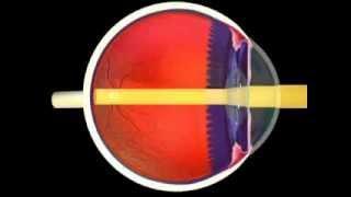 Glaucome mécanismes et signes du glaucome en vidéo santé 3D