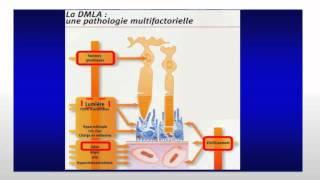 Mardi Santé du 28 octobre 2014 - La DMLA vers de nouvelles perspectives