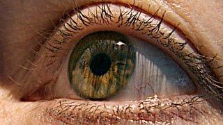 DMLA : une maladie aux symptômes discrets