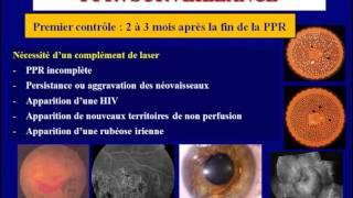 traitement au laser de la retinopathie Diabetique
