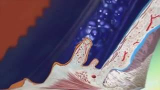 Le glaucome et ses traitements